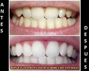 Best Way To Whiten Teeth At Home Fast Naturally