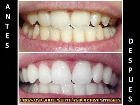 Best Way To Whiten Teeth At Home Fast